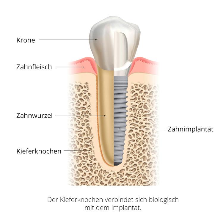 Implantologie & Zahnärztliche Chirurgie | Zahnarztpraxis Lars Stürze